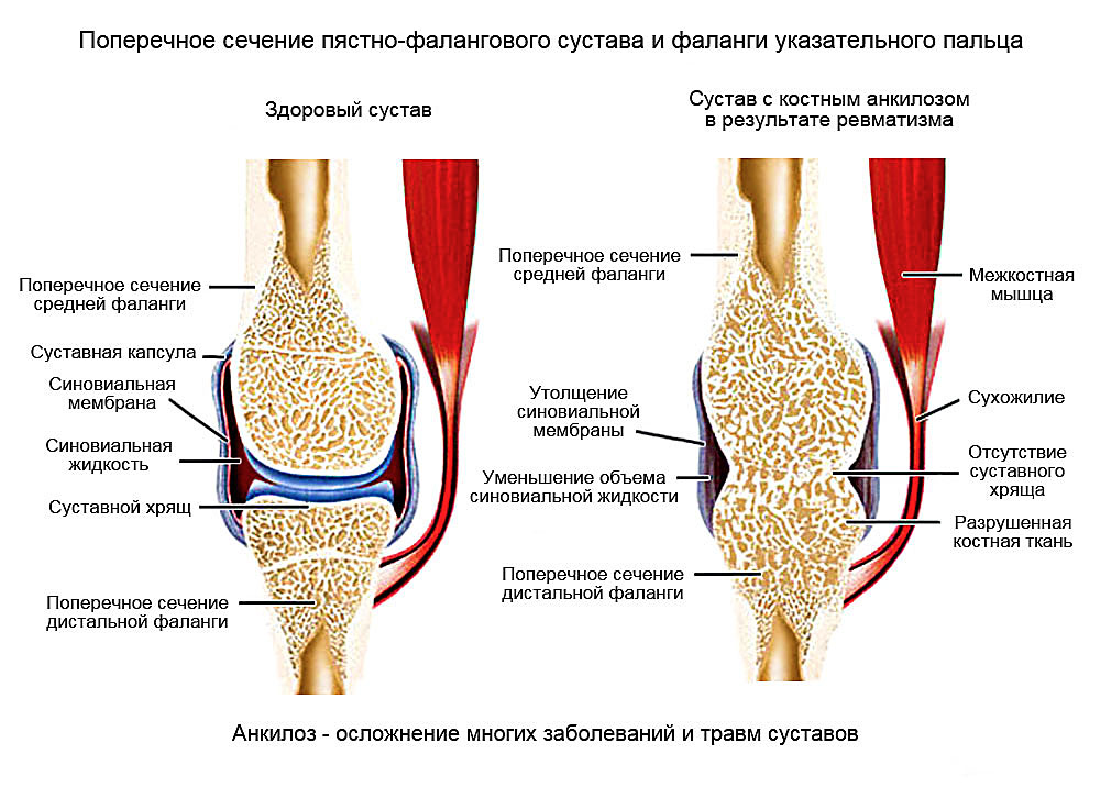 Изображение - Анкилоз сустава лечение prichiny-ankiloza