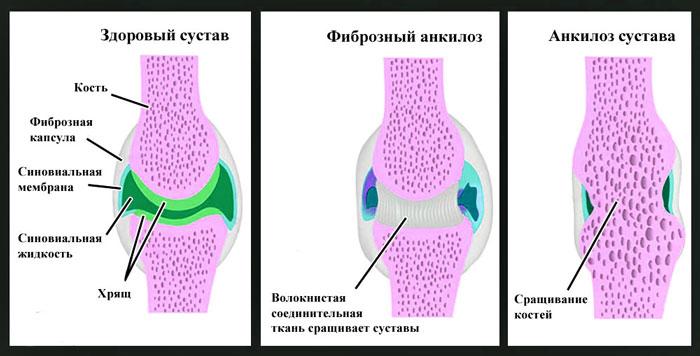 прогноз анкилоза