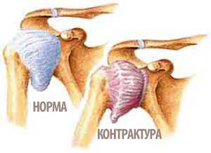 Симптомы контрактур