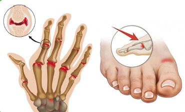 Поражение мелких суставов кистей и стоп при болезни Рейтера