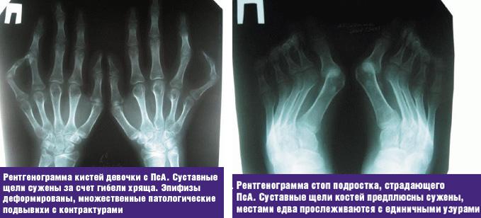 диагностика рентгеном псориатического артрита у детей