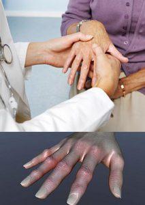 Лечение детского псориатического артрита
