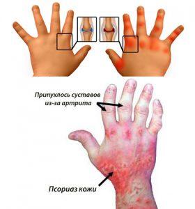причины псориатического артрита у детей