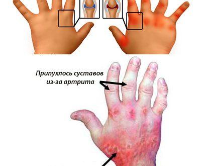 Сравнительный анализ эффективности методов лечения псориаза