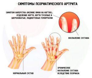 Прогноз псориатического артрита у детей