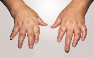 Симптоматика псориатического артрита у детей