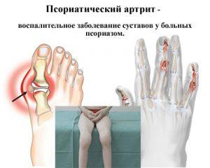 Симптомы псориатического артрита у детей