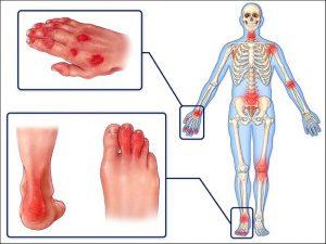 Смена вида псориатического артрита у детей