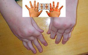 Виды диагностики псориатического артрита у детей