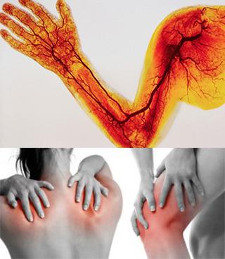 Артралгии при болезнях крови и сосудов