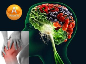 Артралгии при гипервитаминозе витамина А