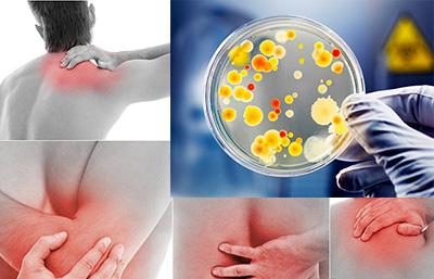 Артралгии при онкологических заболеваниях
