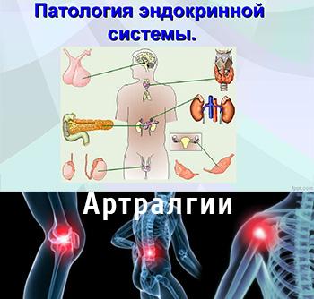 Артралгия при эндокринной патологии
