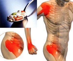 Артралгии от побочного действия медикаментов