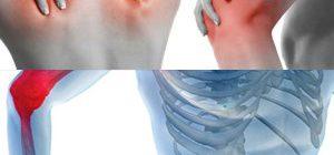артралгии при ревматических заболеваниях
