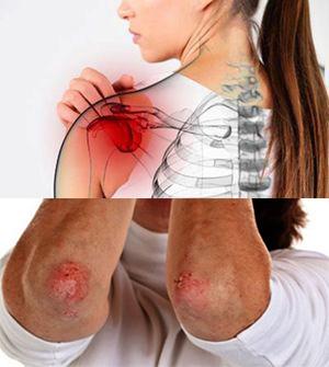 Артралгии при инфекционных заболеваниях