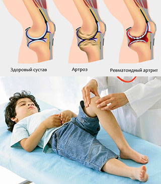 Диагностика артрита у детей