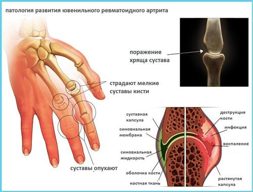 Диагностика ювенильного анкилозирующего спондилоартрита