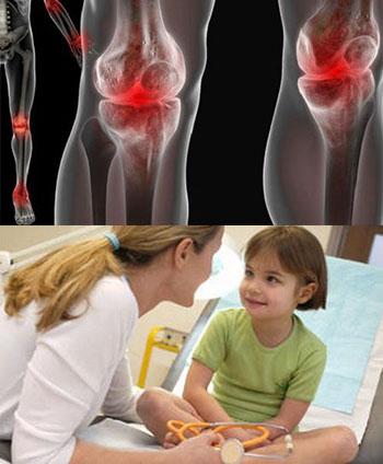 диагностика реактивного артрита у детей