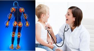 Ревматоидный артрит у детей симптомы