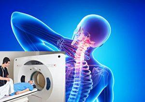 диагностика шейного ювенильного ревматоидного артрита