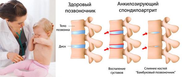 факторы возникновения ювенильного анкилозирующего спондилоартрита у детей