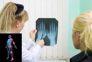 характеристики ювенильного ревматоидного артрита