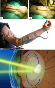 Хирургическое лечение ювенильного ревматоидного артрита