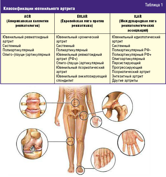 Классификация ювенильного ревматоидного артрита