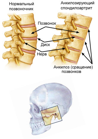 функциональные классы ювенильного ревматоидного артрита: анкилоз