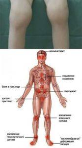 критерии диагностики реактивного артрита у детей