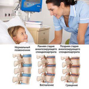 Лечение ювенильного анкилозирующего спондилоартрита у детей