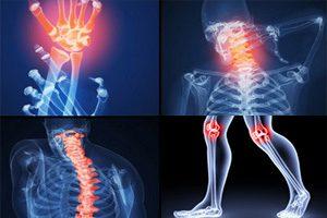 Основные симптомы ювенильного ревматоидного артрита