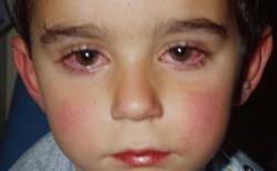Основные симптомы реактивного артрита у детей