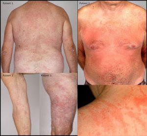 Последствия ювенильного ревматоидного артрита - синдром Стилла