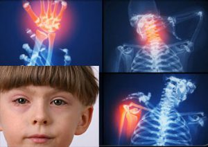 Причины артрита у ребенка
