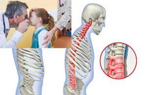 Причины ювенильного анкилозирующего спондилоартрита у детей