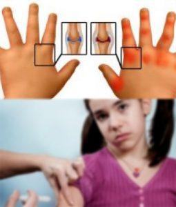 Поствакцинальные реакции: артрит