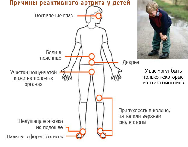 Причины реактивного артрита у детей