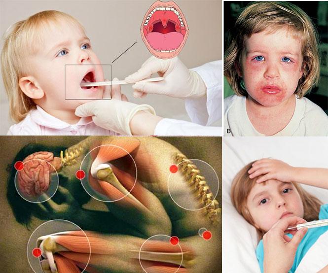 Признаки ревматического артрита у детей