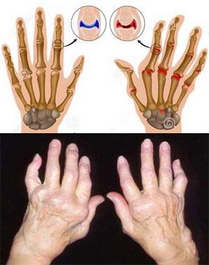 признаки ювенильного ревматоидного артрита