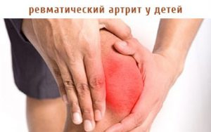 ревматический артрит у детей