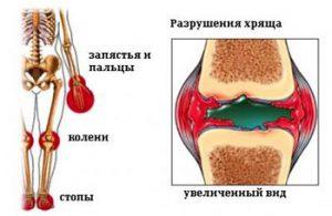 Ремиссия ювенильного ревматоидного артрита