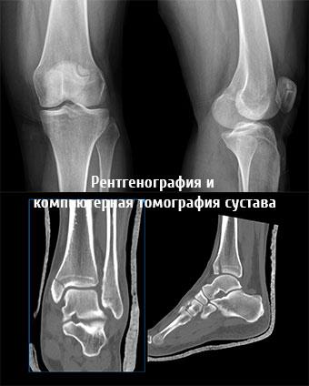 Рентгенография и компьютерная томография сустава