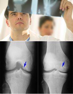 рентгенография инфекционного артрита у детей