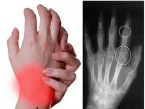 рентгенография реактивного артрита у детей
