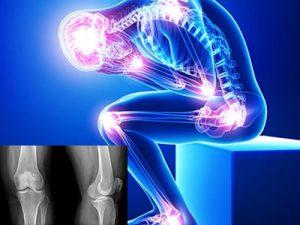 рентгенография и лабораторные признаки ювенильного ревматоидного артрита
