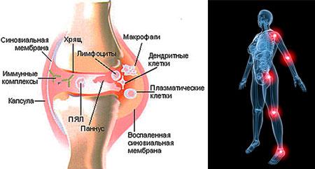 Симптомы ювенильного ревматоидного артрита