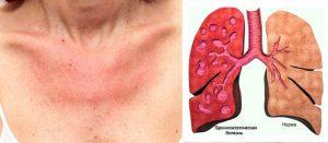 Последствия ювенильного ревматоидного артрита - Аллергосептичесий синдром