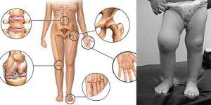 Симптомы ювенильного анкилозирующего спондилоартрита